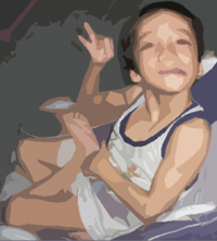 1227 - cerebral palsy